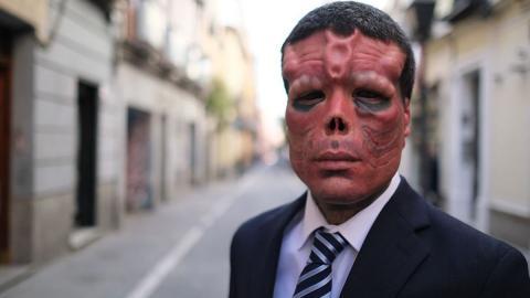 Cráneo Rojo de Galicia